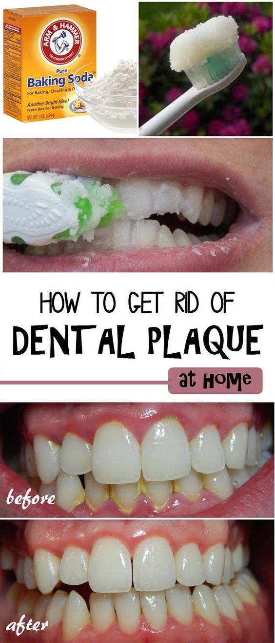 How To Get Rid Of Dental Plaque Naturally
